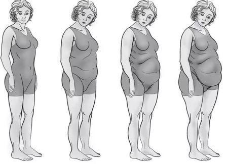 Степень женского ожирения