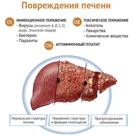 Этапы заболевания печени