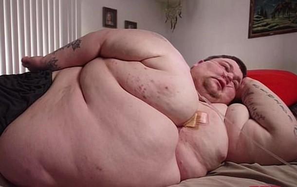 Что такое запредельный вес человека или толстое тело